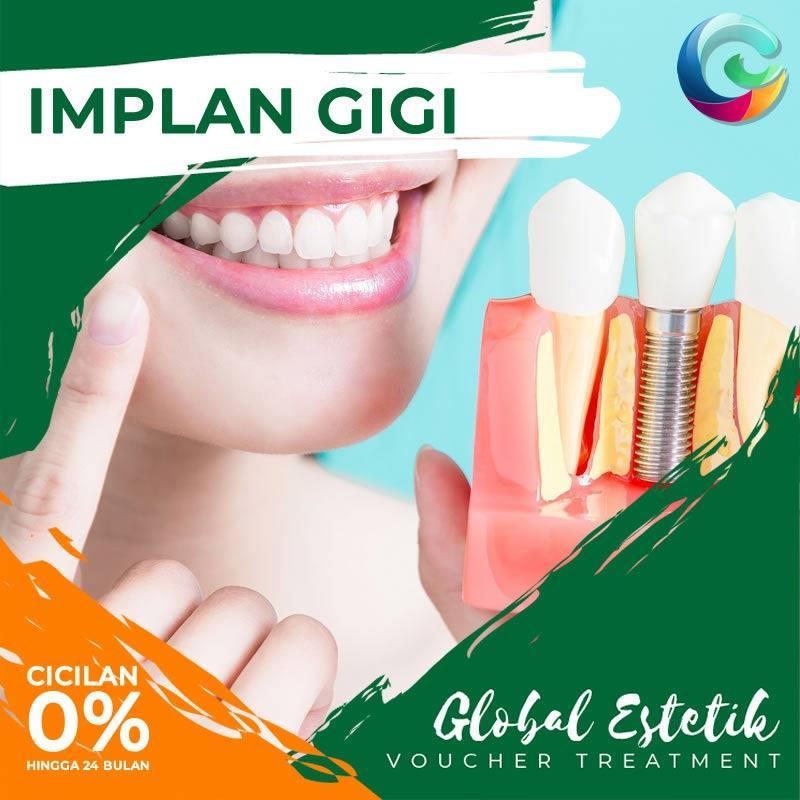 Voucher Global Estetik Implant Gigi