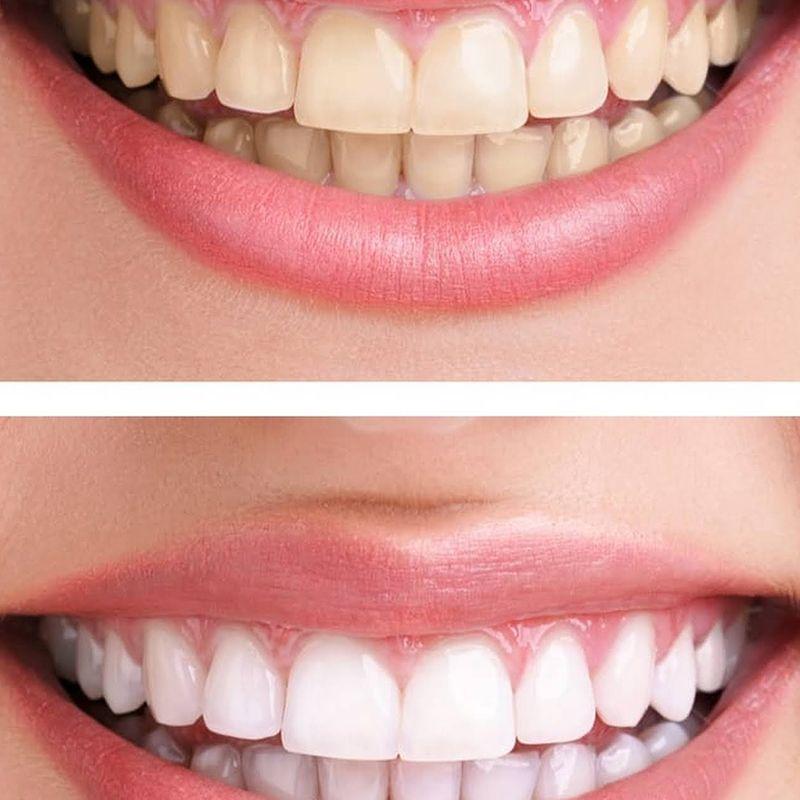 Voucher DENTALMATE DENTALCARE Paket Scaling Polishing Bleaching Teeth Whitening