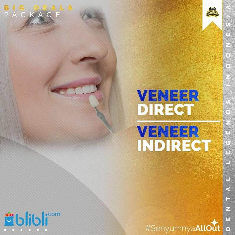 Voucher Dental Legends Indonesia Veneer Direct