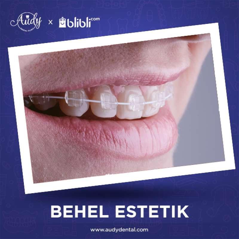Voucher Audy Dental Clinic Behel Estetik Fix Ceramic Inspire Ice