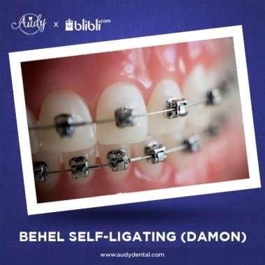 harga Voucher Behel Self Ligating Empower - Clippy Clear Audy Dental Pondok Bambu Blibli.com