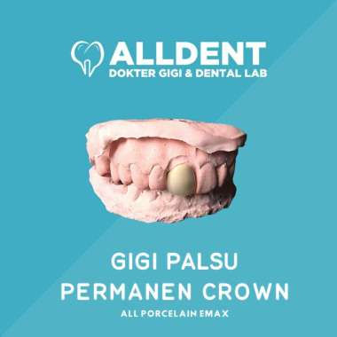 Gigi Palsu Permanen Crown - All Porcelain Emax